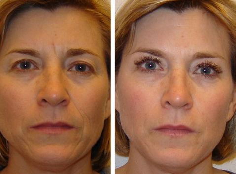 Безинъекционная мезотерапия лица фото до и после